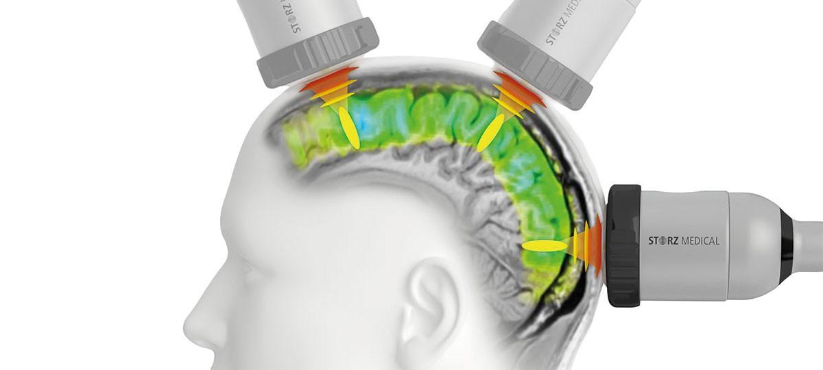 Transcranial Pulse Stimulation (TPS)