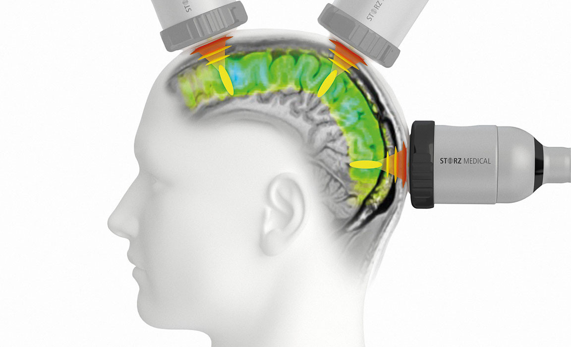 2020-09-30_news_TPS-enables-targeted-stimulation-of-cerebral-region