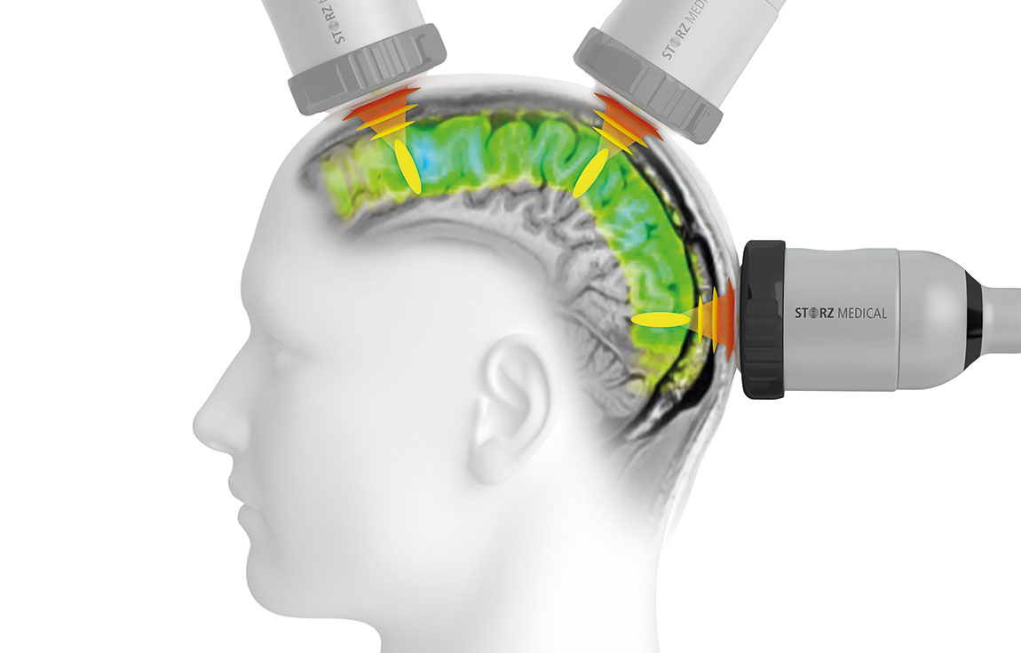 TPS® enables targeted stimulation of cerebral regions.