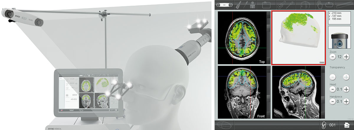 Real-time visualization of TPS® treatment