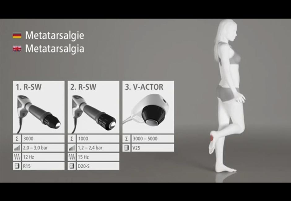 Видео презентация процедуры ударно-волновой терапии на примере лечения метатарзалгии